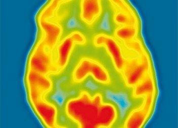 brain radiografia cerebro